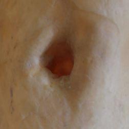 latex (inverted nipple)